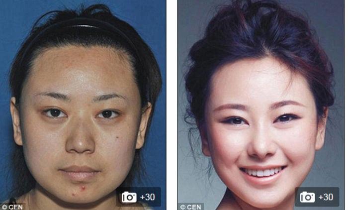Chinesas procuram cirurgias plásticas na Coréia do Sul e saem completamente diferentes