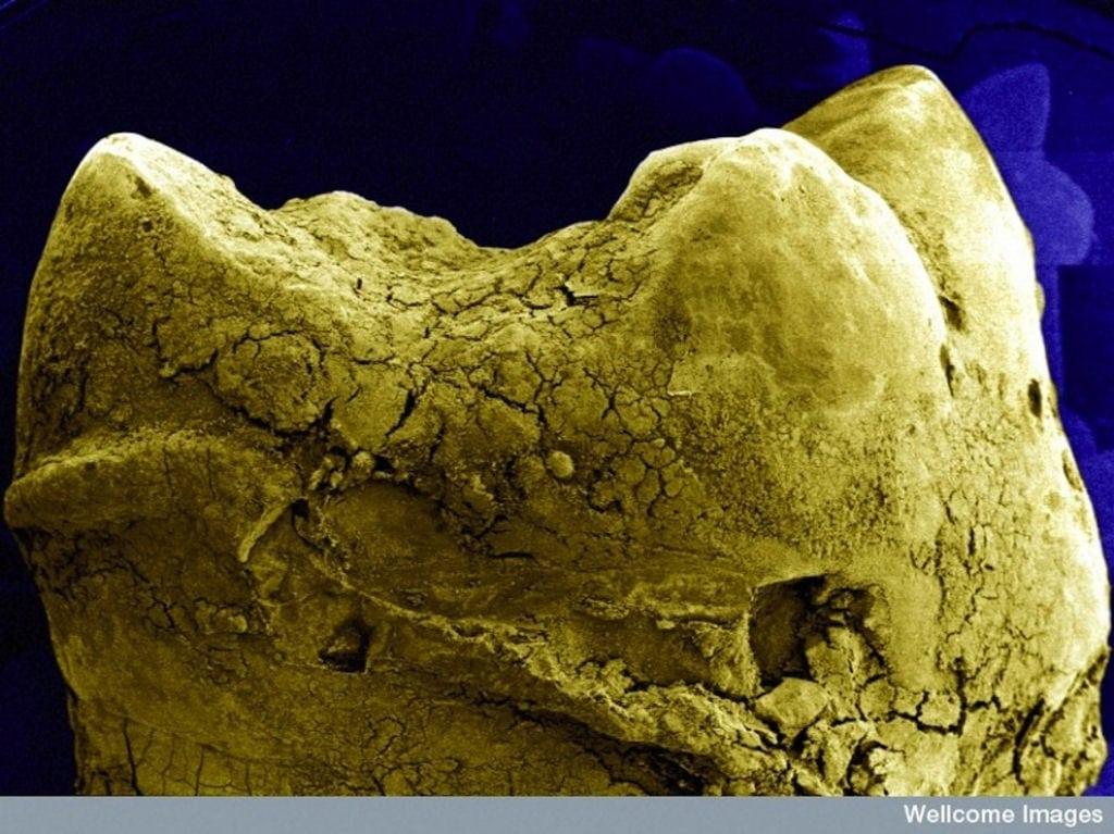 15 coisas comuns que ficam extremamente bizarras no microscópio