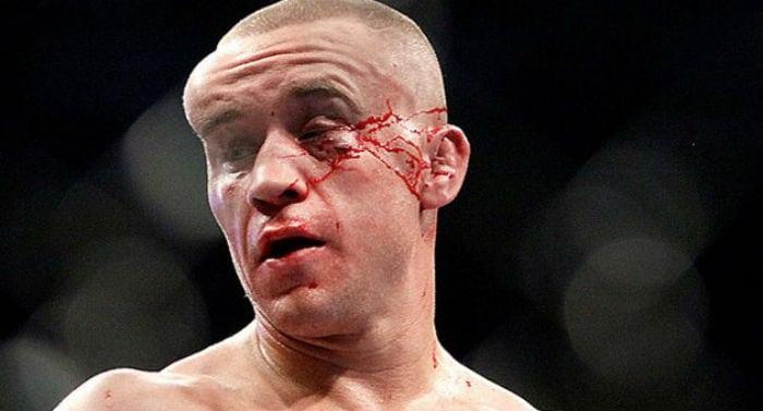15 piores e mais violentas lesões do MMA