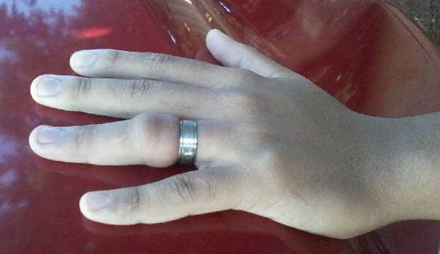 Como retirar um anel preso do dedo? Essa técnica é épica!