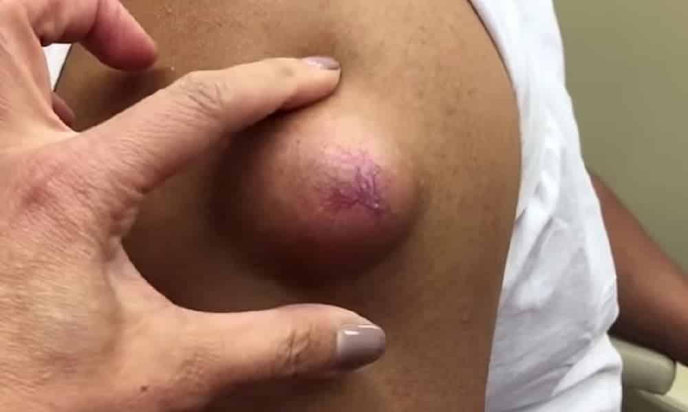 Dermatologista faz sucesso na web com vídeos espremendo cravos e espinhas