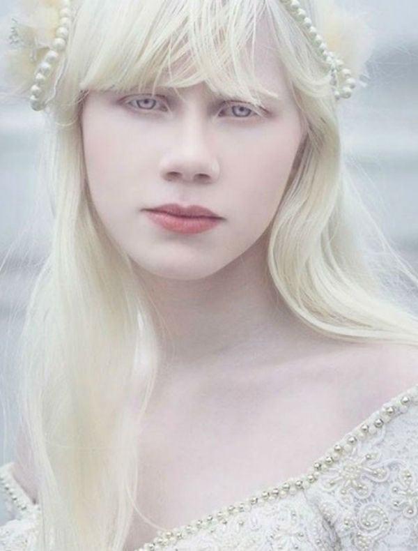17 pessoas albinas que vão surpreender você pela beleza