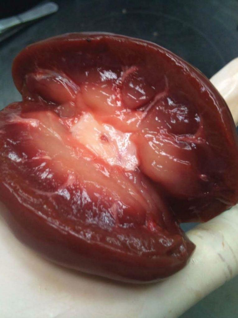 6 órgãos humanos sem os quais você pode viver