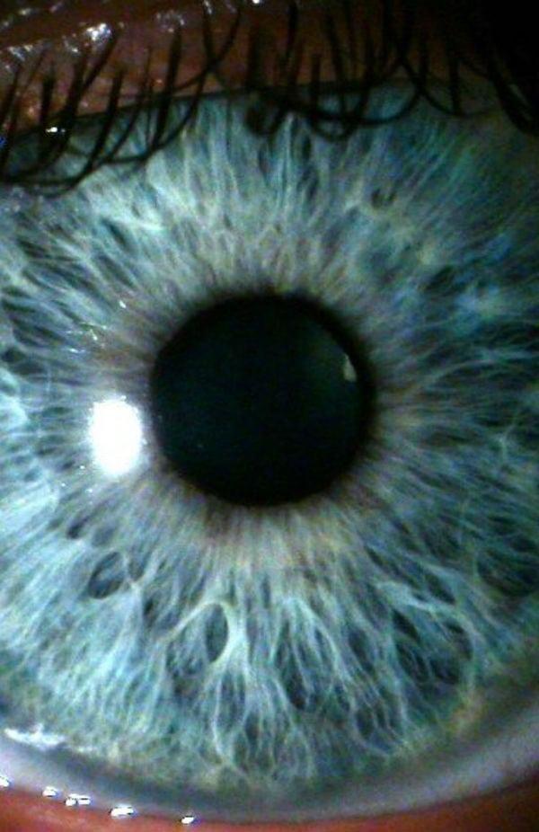 6 coisas que a Ciência diz sobre olhos azuis