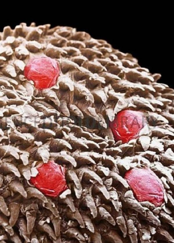 Como parasitas em raça de intestinos