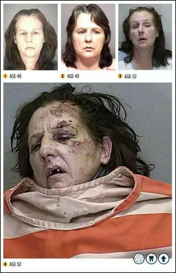 Metanfetamina: os efeitos da droga na aparência dos usuários