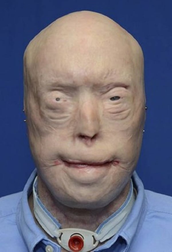 Americano recebe o maior transplante de rosto da história