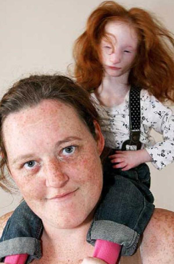 Conheça a doença das meninas-bonecas: elas NUNCA vão crescer!
