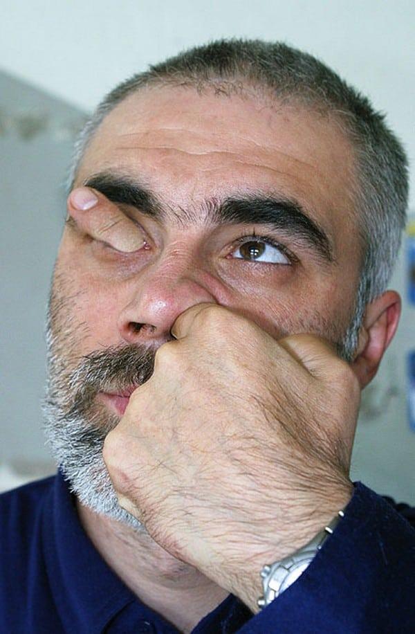 Você NUNCA mais vai meter o dedo no nariz depois disso