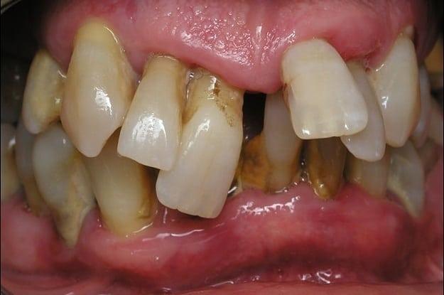 8 curiosidades nada agradveis sobre os dentes humanos 9 altavistaventures Image collections