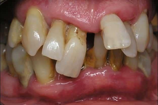 8 curiosidades nada agradáveis sobre os dentes humanos