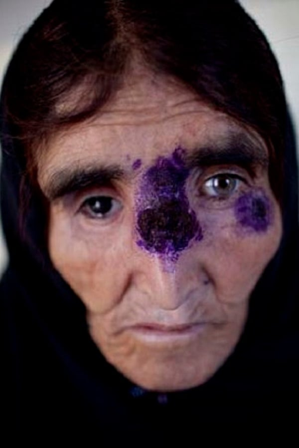 Síria enfrenta surto de parasita que se alimenta de carne viva