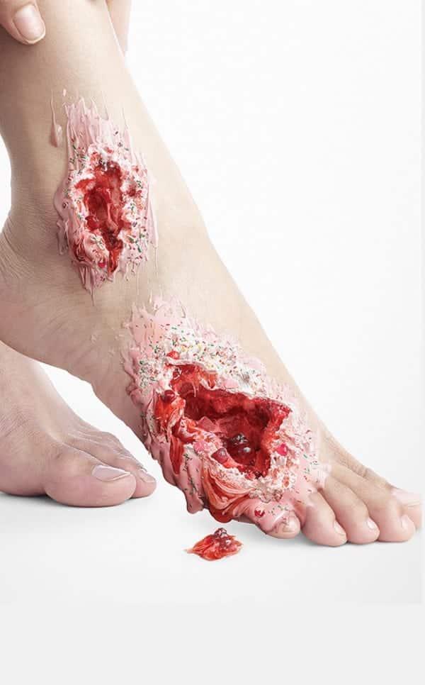 Diabetes: imagens com doces alertam para riscos da doença