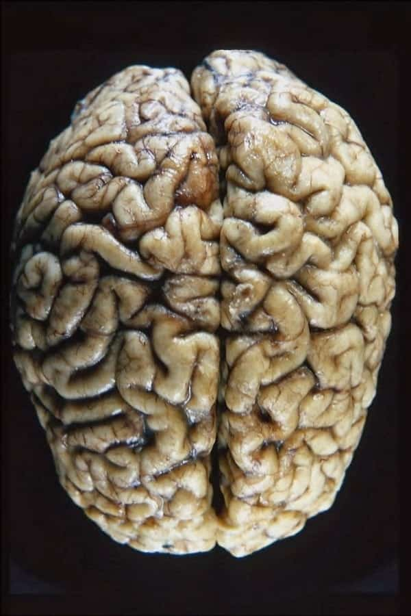 5 mitos sobre o cérebro que você precisa parar de acreditar