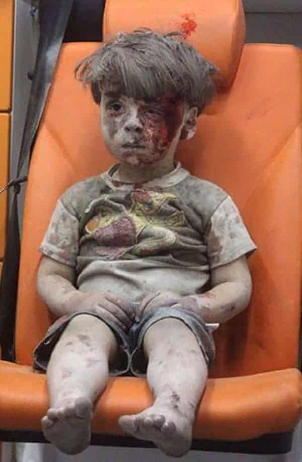 Garotinho se torna símbolo da guerra civil da Síria e emociona a web