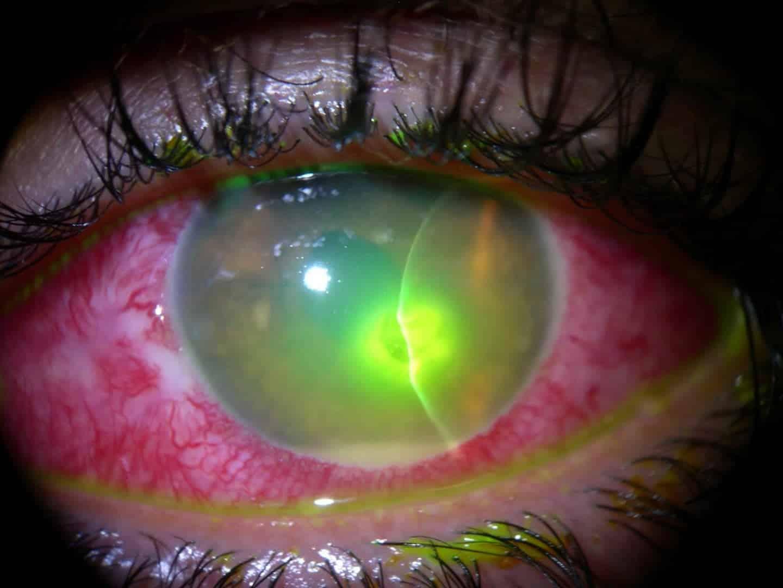 Quanto todo esse processo de limpeza e lubrificação cessa, aumentam as  chances de adesão das lentes de contato à córnea. O resultado disso pode  ser olhos ... af0fe32e79