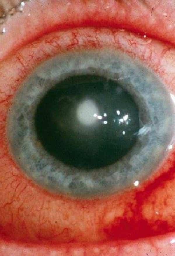 c72dcb2a56adf O que realmente acontece se você dormir com lente de contato ...