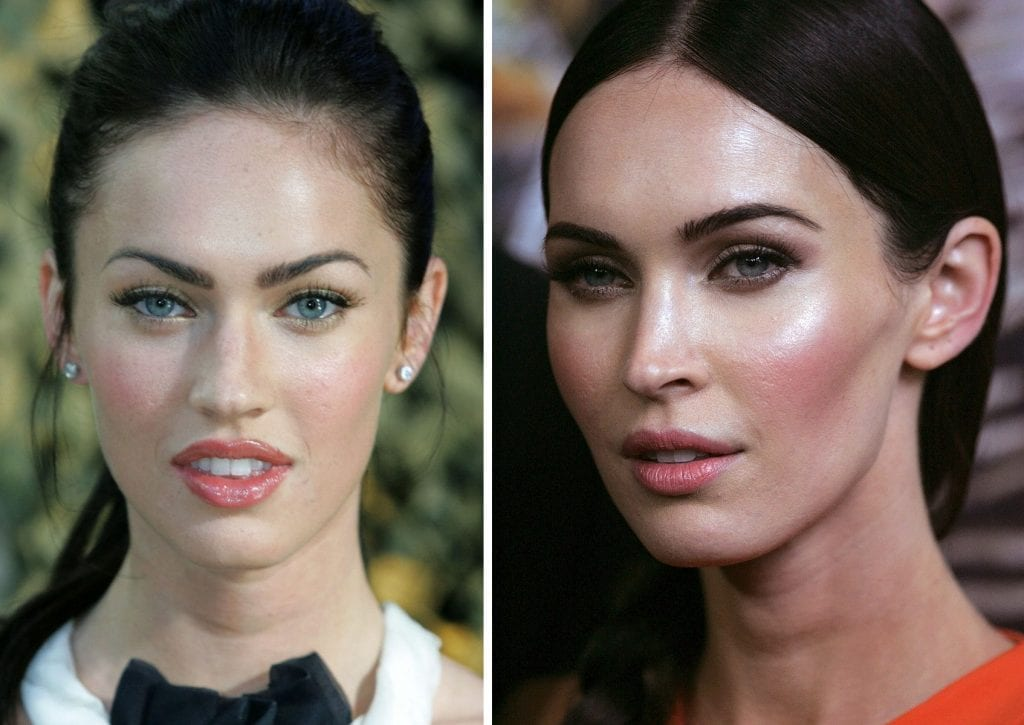 Bichectomia – 14 famosas que enfrentaram a redução de bochechas