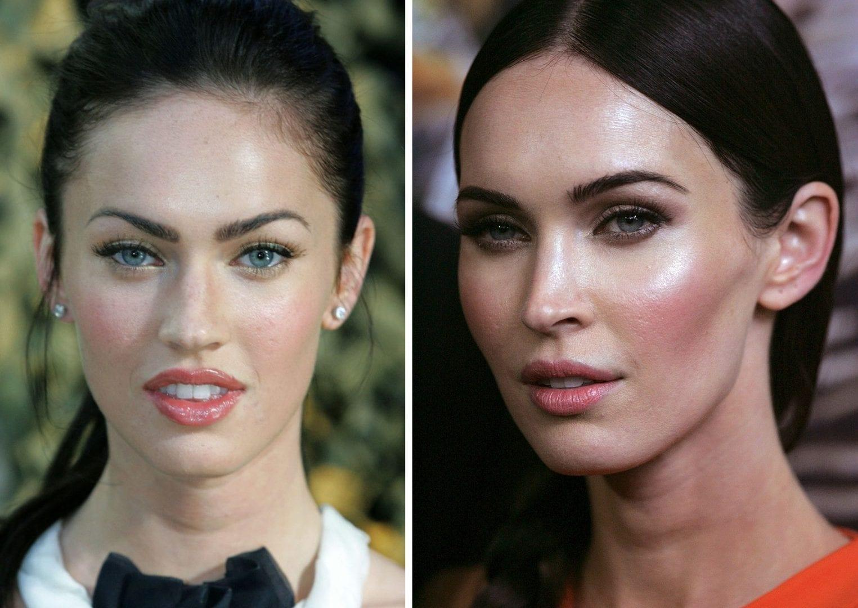 Bichectomia - 14 famosas que enfrentaram a redução de bochechas