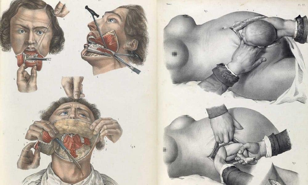 Veja como eram feitas as cirurgias sem anestesia no passado