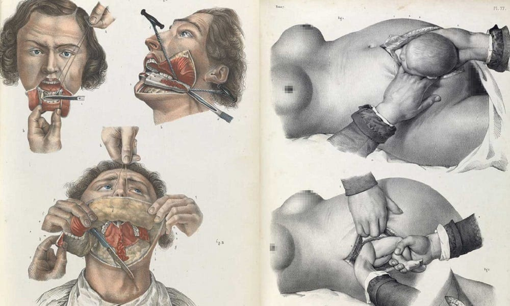 Cirurgias sem anestesia – Como eram feitas as operações no passado?