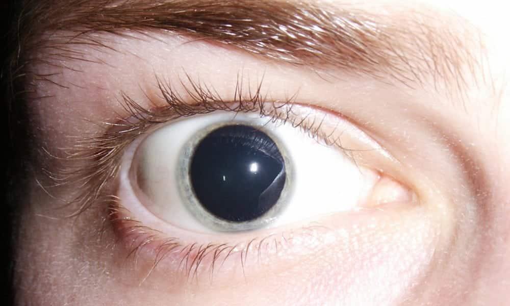 Suas pupilas denunciam sua sexualidade, segundo a Ciência