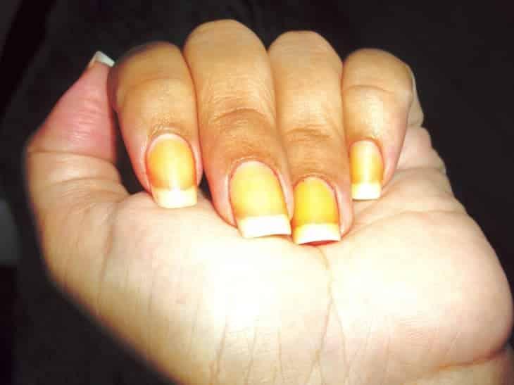 1 37 - 10 sinais de alerta que suas unhas podem mostrar