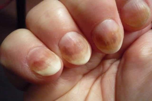 11 4 - 10 sinais de alerta que suas unhas podem mostrar