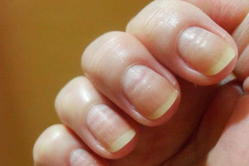 2 30 - 10 sinais de alerta que suas unhas podem mostrar