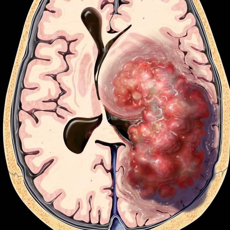 tumor maligno en el cerebral tiempo de vida