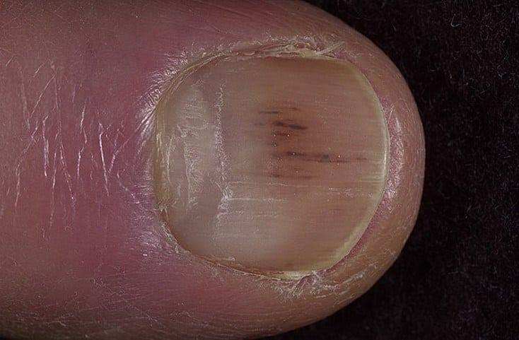 3 32 - 10 sinais de alerta que suas unhas podem mostrar