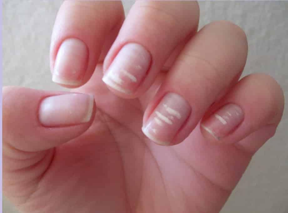 4 32 - 10 sinais de alerta que suas unhas podem mostrar