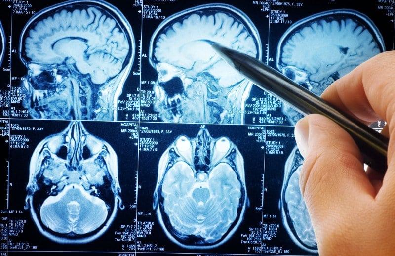quais os sintomas de cancer cerebral