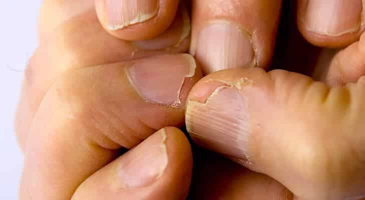 6 15 - 10 sinais de alerta que suas unhas podem mostrar