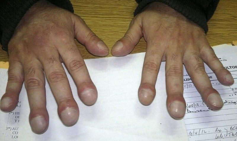 7 13 - 10 sinais de alerta que suas unhas podem mostrar