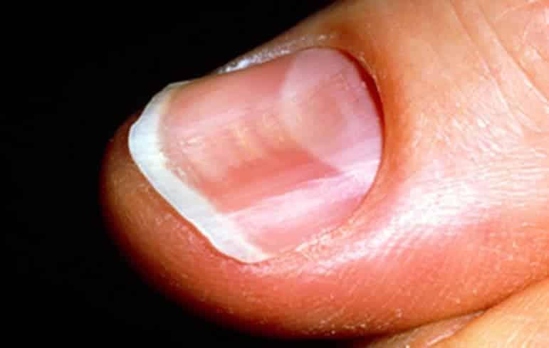 8 10 - 10 sinais de alerta que suas unhas podem mostrar