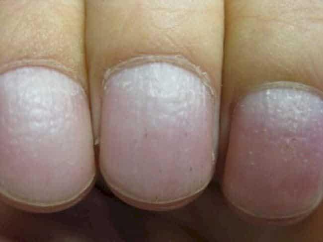 9 7 - 10 sinais de alerta que suas unhas podem mostrar