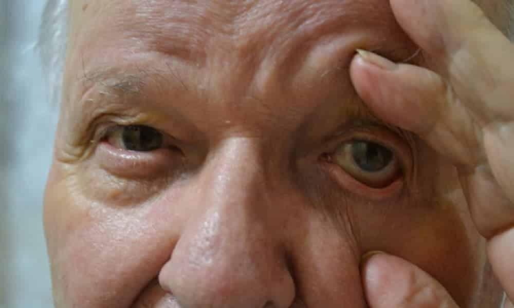8 fatos desconhecidos que os olhos revelam sobre a saúde