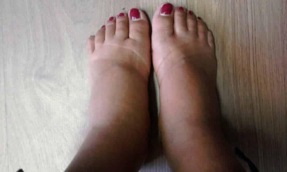 Queimam pés que por suam meus e