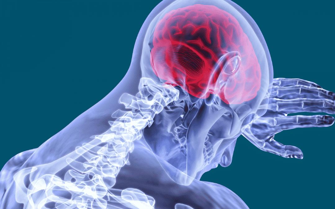 AVC - 4 tipos de dores de cabeça que podem ser sinal de AVC