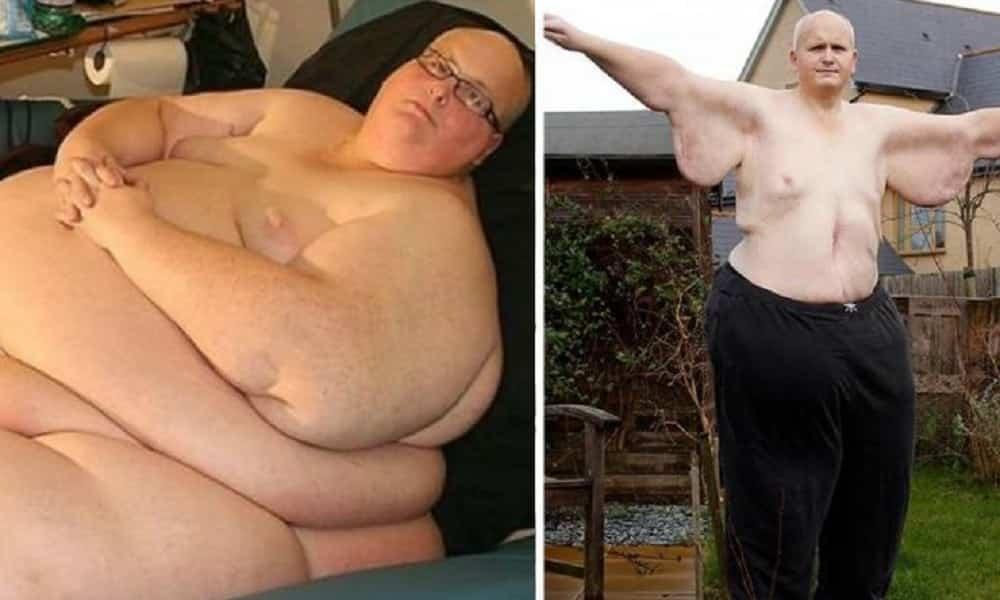 Homem mais gordo do mundo faz cirurgia e emagrece quase 300 kg