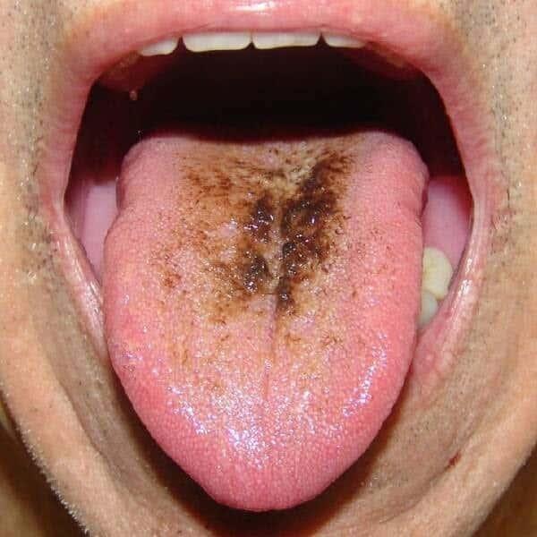 Placa amarela  Alteração no funcionamento dos órgãos do sistema digestivo . 268ea4762f