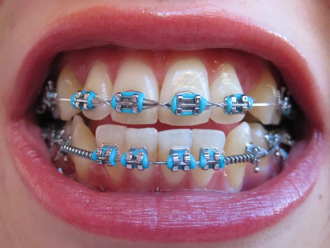 15 Sorrisos Que Se Transformaram Depois Do Aparelho Ortodontico
