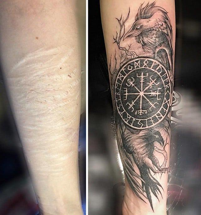 21 ideias criativas de tatuagens para cobrir cicatrizes for Skin tone tattoo cover up