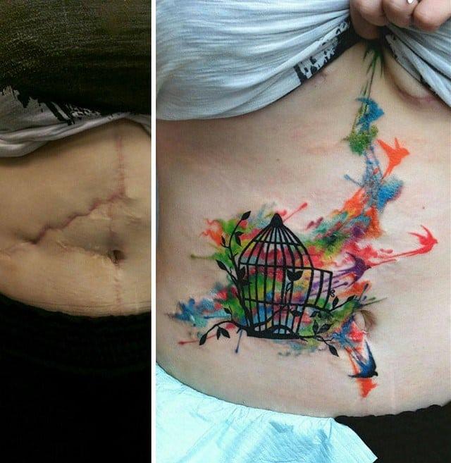 Famosos 21 ideias criativas de tatuagens para cobrir cicatrizes PH48