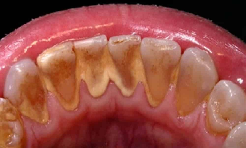 Como Eliminar Tartaro E Clarear Os Dentes Com Esse Remedio Caseiro