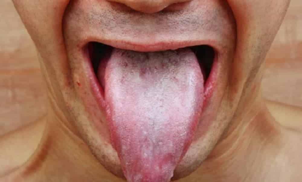 A cor da sua língua pode revelar sérios problemas de saúde