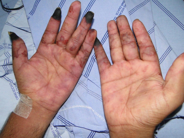 De mãos dormentes causas