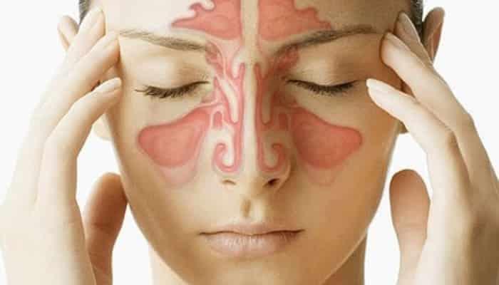 Desentupir o nariz - 7 formas que realmente funcionam
