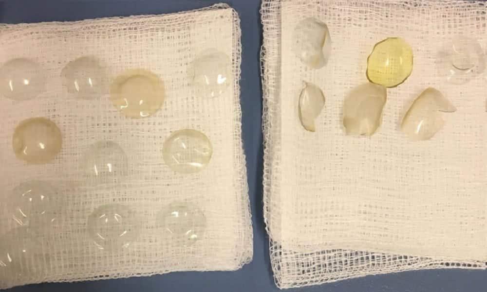 Médicos retiram 27 lentes de contato dos olhos de paciente